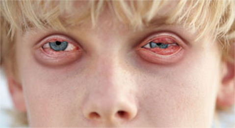Light Conjunctivitis